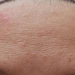 לפני טיפול פנים